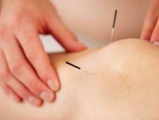 Acupunctuur verbetert klachten van de knie