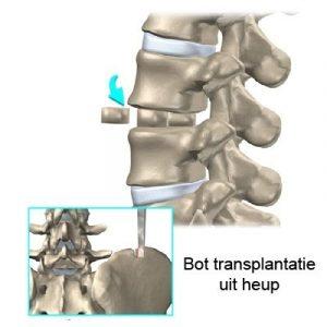 Bot transplantaat