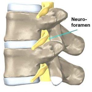 Neuroforamen