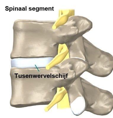 artritis symptomen rug