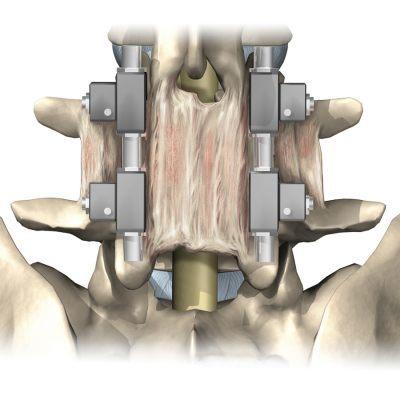 facetartrose behandeling
