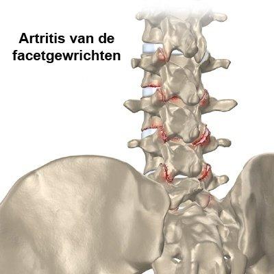 Artritis van de facetgewrichten