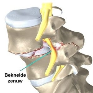 back brace and spondylothesis Spondylolisthesis is a condition in the spine that describes on vertebra slipping down over the top of the vertebra below it back brace if the pain.