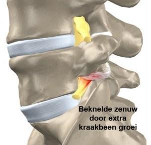 Spondylolyse Artroseblog