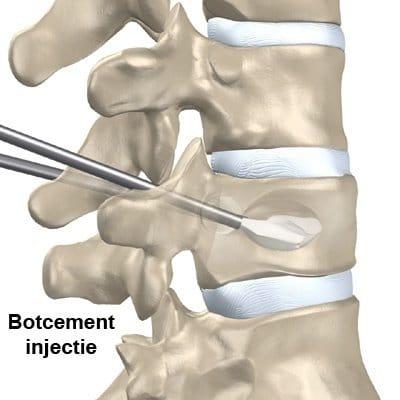 Botcement injectie
