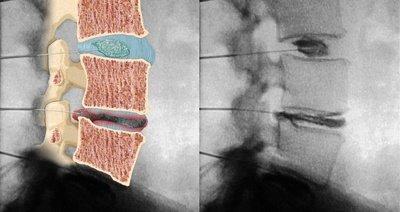 zenuwen benen anatomie