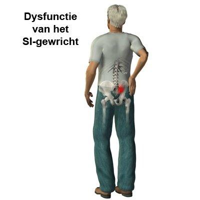 Dysfunctie van het SI-gewricht