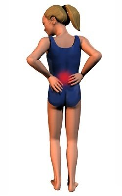 Symptomen van spondylolisthesis