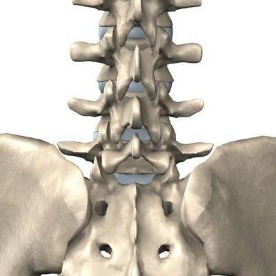 artrose onderrug symptomen