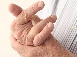Artritis; wanneer de knie en heup achteruitgaan