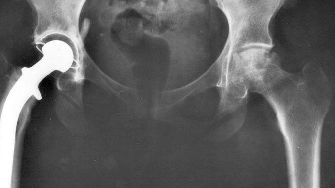 gegeneraliseerde artrose