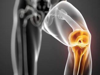 Knieklachten door artrose