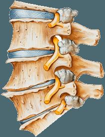 Symptomen Artrose