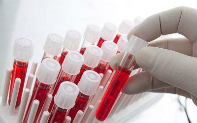 Binnenkort met een bloedtest testen op artrose