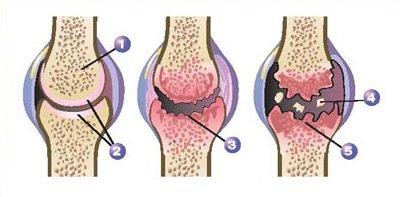 Wat is artrose?