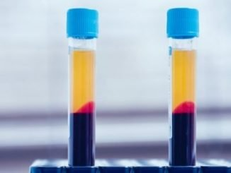 PRP injecties bij artrose