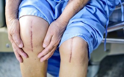 Knieprothese: halve, totale, robotchirurg of 3D-geprint?