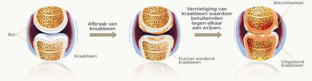 Ziekteverloop van artrose