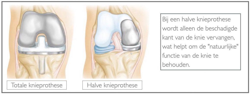 Verschil tussen een halve en totale knieprothese