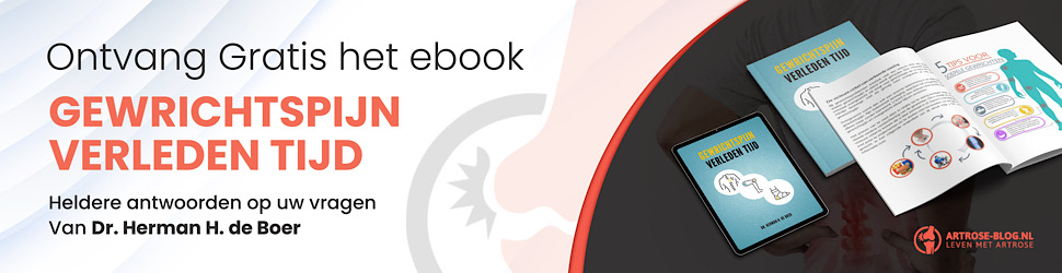 Ebook over artrose